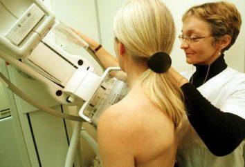 ¿Quién es el médico-mammolog?