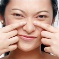 Jak pozbyć się zaskórników na twarzy