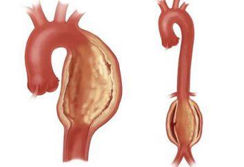 Aneurisma da aorta do coração – o que é? Aneurisma da Aorta: causas, sintomas, tratamento