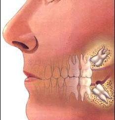 diente impactado – es decir, cómo tratarla?