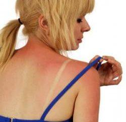 Ambulância em casa: um creme para queimaduras solares, térmicos e outros