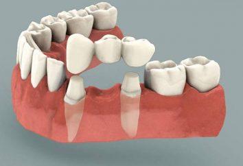 Bóle zęba pod koronę. Co zrobić w tym przypadku?