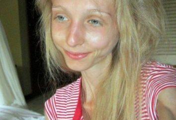 Xenia Bubenko Geschichte ihrer Krankheit