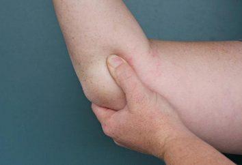Ciò che il gomito destro? Iscriviti o lesioni?