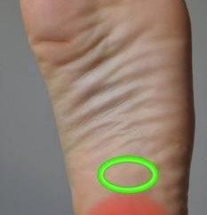 Prevenção e tratamento de esporão de calcanhar em casa