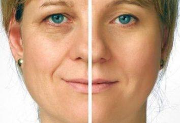 """""""DMAE"""" nominalna: Opinie kosmetologów, opis procedury, przeciwwskazania"""