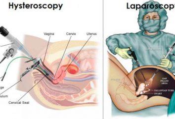 Laparoskopii i histeroskopii: czytanie, opinie, że lepiej