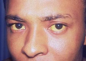 Jak jest żółtaczka: jakie środki ostrożności należy przestrzegać, aby nie zarazić lub zostać zainfekowany