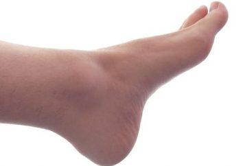 Informações úteis: o que fazer quando os pés inchados