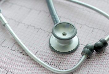 Vorhofflimmern des Herzens: Was ist das und wie ist es gefährlich?