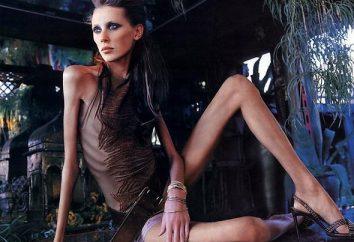 """Anoressia. Come malato che la malattia """"di moda""""?"""