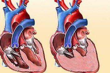 CHF: klasyfikacja. Objawy przewlekłej niewydolności serca leczenie