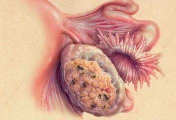 Przyczyny i objawy torbieli jajnika pęknięcie