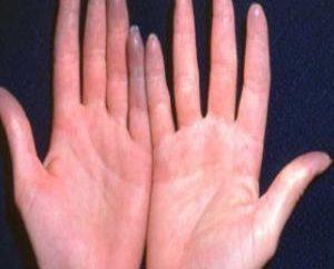 ¿Qué pasa si los dedos congelados. Las primeras acciones obligatorias