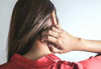 Nummulyarnaya Eczema: Causas e Tratamento