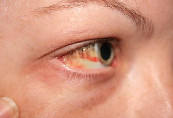 Co rozerwanie naczyń krwionośnych w oku?