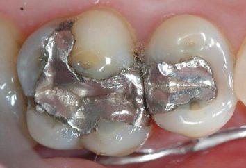 Joints métalliques: la vie, les avantages et les inconvénients, commentaires