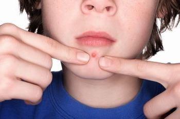 Quelle est la cause principale des boutons sur le menton