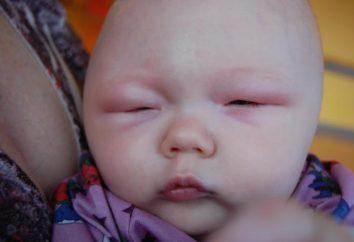 Si su hijo tiene un ojo hinchado – no se demore!