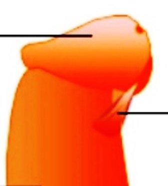 frenillo corto pene