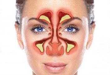 sphenoiditis cronica – che cos'è? Sphenoiditis: sintomi, diagnosi e trattamento