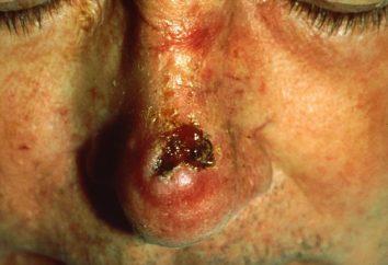 Cancro cheratinizzante planocellulare: caratteristiche dello sviluppo e del trattamento