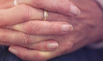 Jak zidentyfikować paznokci grzyba: objawy, możliwe przyczyny i cechy leczenia