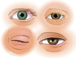 Powieki: choroba powiek. Chorób i patologii wieku