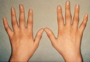Reumatoidalne zapalenie stawów. Leczenie środków ludowej: Przepisy