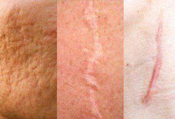 cicatrici atrofiche: cause di trattamento