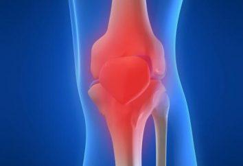 ginocchio DOA: cause, sintomi a diversi stadi di trattamento