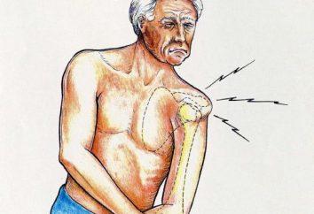 Luxation des Schultergelenkes: Behandlung zu Hause. Luxation des Schultergelenkes: Ursachen
