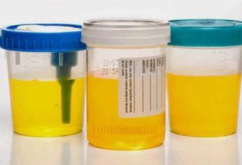 Fa cambiare il colore delle urine durante la gravidanza?