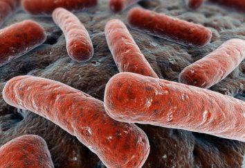 Causas y las principales características de la tuberculosis pulmonar en adultos