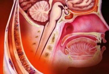 Objawy, przyczyny i leczenie ropnego zapalenia opon mózgowych w wśród dorosłych i dzieci