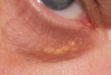 Jakie są białe kropki pod oczami