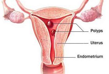 L'élimination des polypes dans l'utérus: avis. La période postopératoire