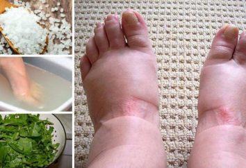jambes gonflées au-dessous du genou: causes et traitements