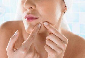 Antibiotische Salbe als Mittel für die Behandlung von Akne