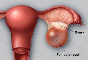 Os cistos ovarianos quebrados: Sintomas, tratamentos, cirurgias, consequências