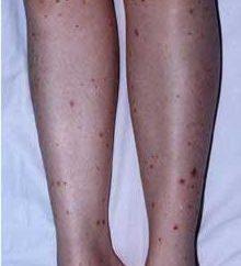 Zapalenie naczyń – co to jest? Znaki formy choroby krwotocznej