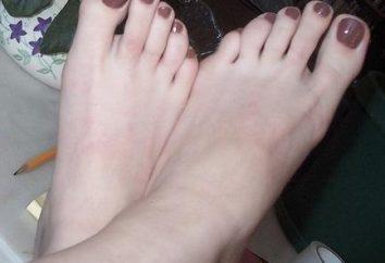 Pegou os pés fungo? Tratamento de remédios populares pode ajudar!