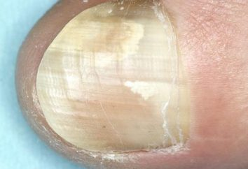 Mycosis Nagel: Wie zu vermeiden, und wie sie zu behandeln