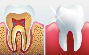 Parodont – che cosa è questo? malattia parodontale