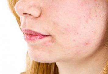 Postacne – che cos'è? trattamenti post-acne