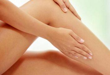 La cirugía en una vena en la pierna: la rehabilitación de las consecuencias