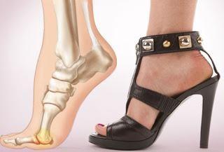 Grande osso em seus pés: tratamento remédios populares