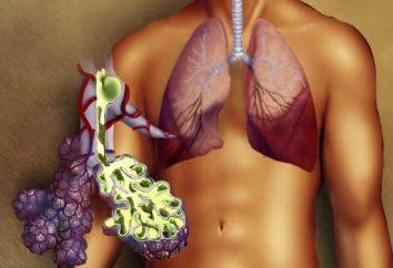 Skuteczne leczenie zapalenia płuc w domu