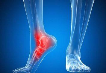 Sindesmosis – ¿qué es esto? sindesmosis tibioperonea ruptura