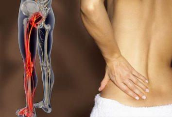 Il mal di schiena si irradia alla gamba: cause, il trattamento